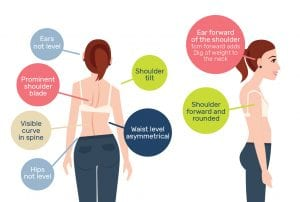 posture in children