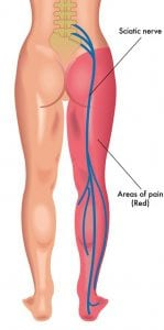 sciatic pain in leg