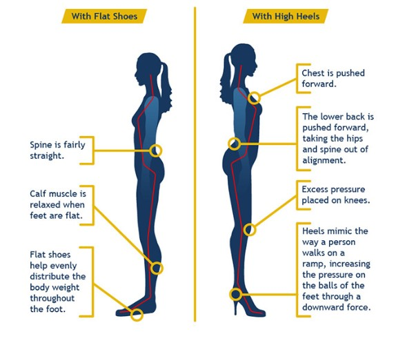 High heels and Low back pain